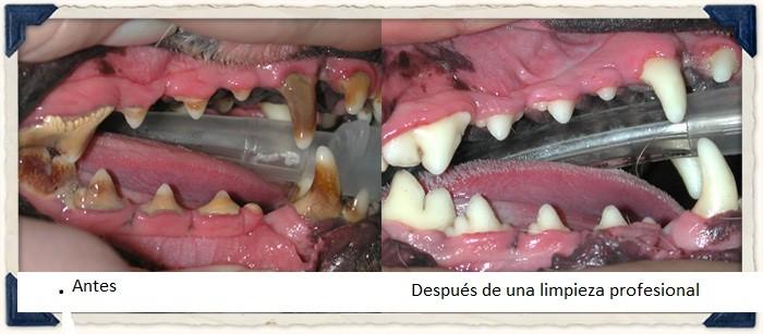 dientes-antes-despues-limpieza